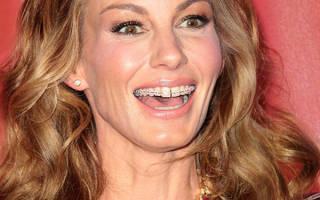 Выравнивание зубов винирами – как это делается