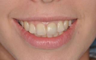 Какие коронки для зубов лучше