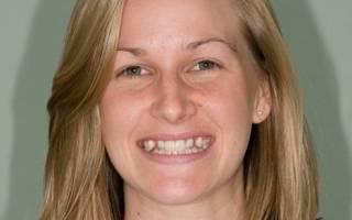 Молочные зубы у взрослых почему