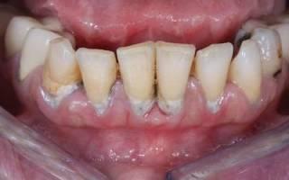 Зубной пародонтоз – что это такое