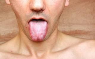Передается ли стоматит при поцелуях