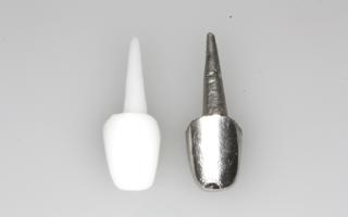 Вкладки для зубов под коронки
