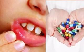 Можно ли пить антибиотики при стоматите