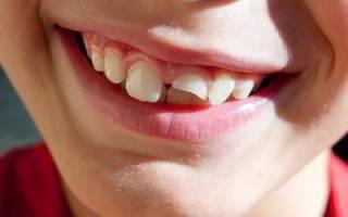 Ломаются зубы – что делать