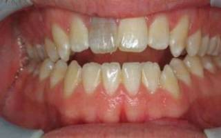 Болит зуб с удаленным нервом причины