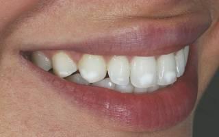 Почему появляются белые пятна на зубах