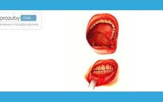 Волдыри во рту на слизистой оболочке – что делать