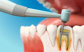 Зубная боль после лечения каналов