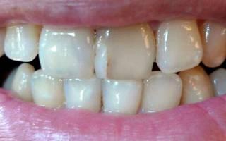 Установка виниров на передние зубы – как происходит процесс