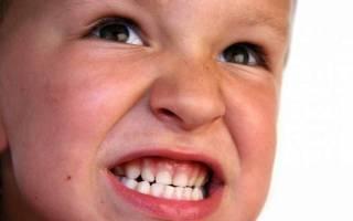 Бруксизм причины и лечение у детей