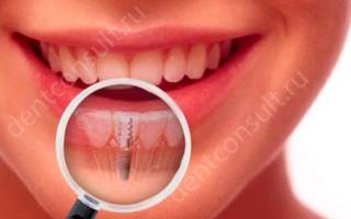 Реабилитация после удаления зуба