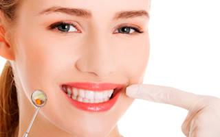 Как почистить зубной камень в домашних условиях