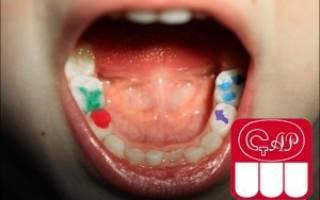 Антибиотики в детской стоматологии