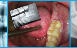 Зуб растет в щеку – что делать