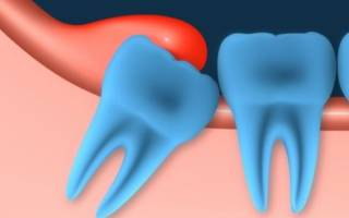 Болит десна над зубом