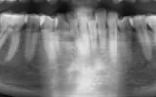 После удаления зуба болит горло
