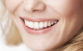 Виниры на зону улыбки – описание и виды