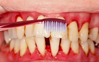 Почему из зуба идет кровь