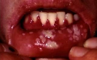 Вирусный стоматит лечение