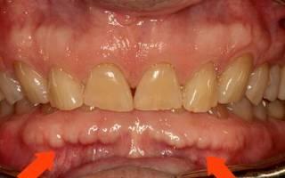 Торчит кость из десны после удаления зуба