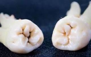 Зуб мудрости температура