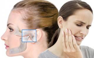 Почему болит нижняя челюсть