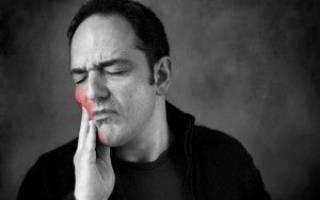 Цитрамон поможет ли от зубной боли