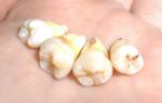 При удалении зуба остался корень последствия