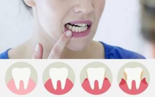 Десны отходят от зубов лечение