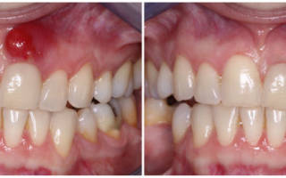 Лечение периостита зуба