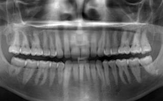Панорамный снимок зубов что это такое
