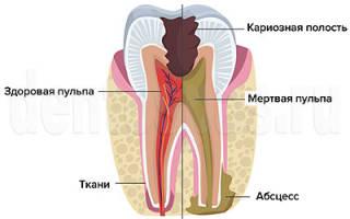 Как болит зуб при пульпите