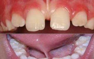 Короткая уздечка верхней губы