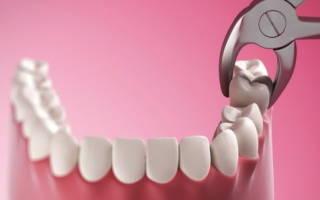 Можно удалять зубы во время беременности