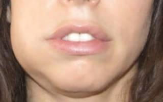 Сильная боль после удаления зуба
