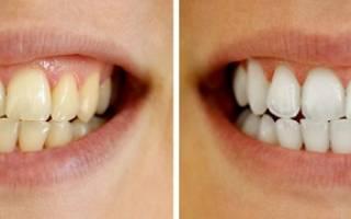 Отбеливание зубов маслом – плюсы и минусы процесса