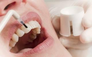 Обработка зубов фторлаком