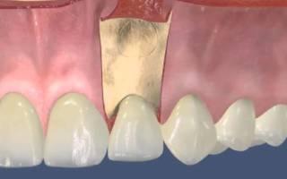 Резекция зуба что это