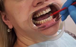 Восстановление эмали зубов в домашних условиях