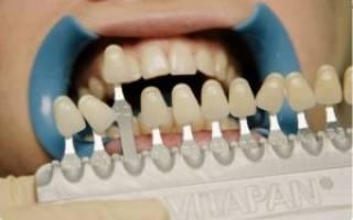 Цвет зубов — что измерять и с чем сравнивать?