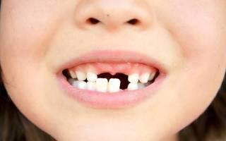 Какие молочные зубы выпадают у детей