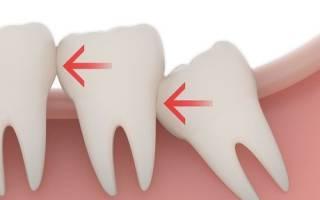 32 зуба с зубами мудрости или нет