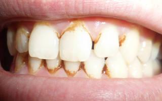 Как чистят зубы от зубного камня