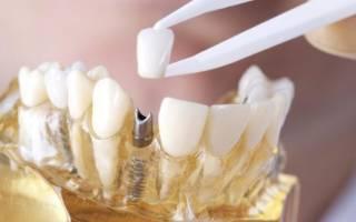 Протезирование нижних зубов – как происходит процесс