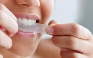 Пластинки для отбеливания зубов – виды и описание
