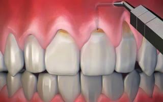 Оголилась шейка зуба