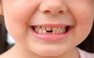 Почему у ребенка крошатся молочные зубы