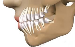 После удаления зуба распухла десна