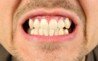Как вылечить язвы во рту быстро