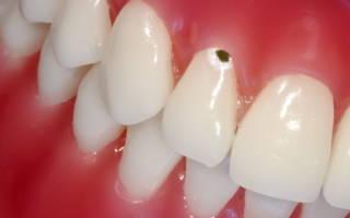 Точки на зубах – что делать